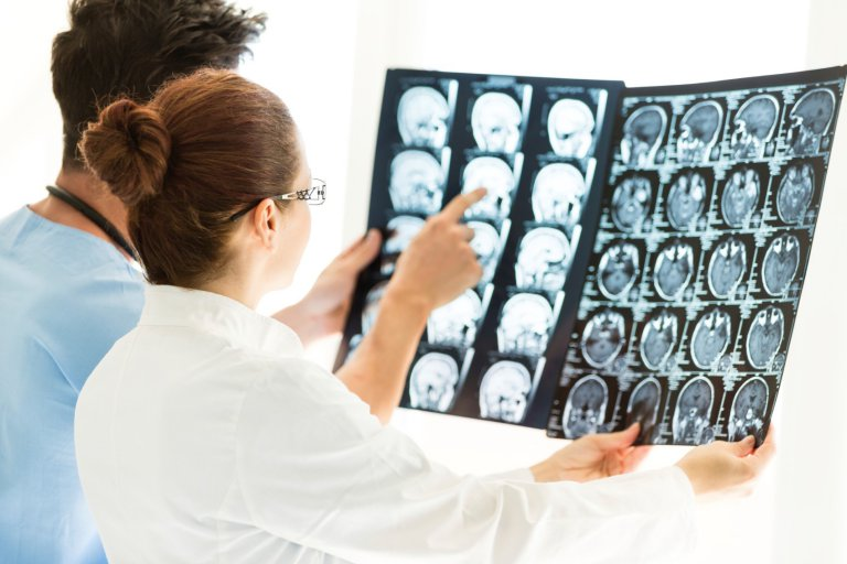 врачи рассматривают снимки головного мозга