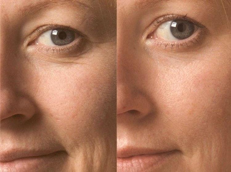 феруловый пилинг фото до и после