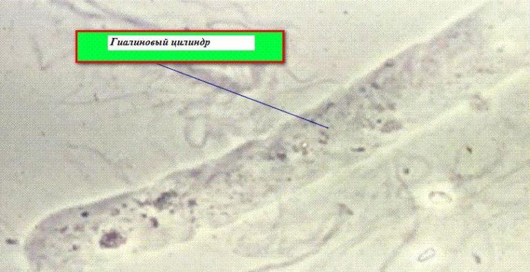 цилиндровые клетки почек
