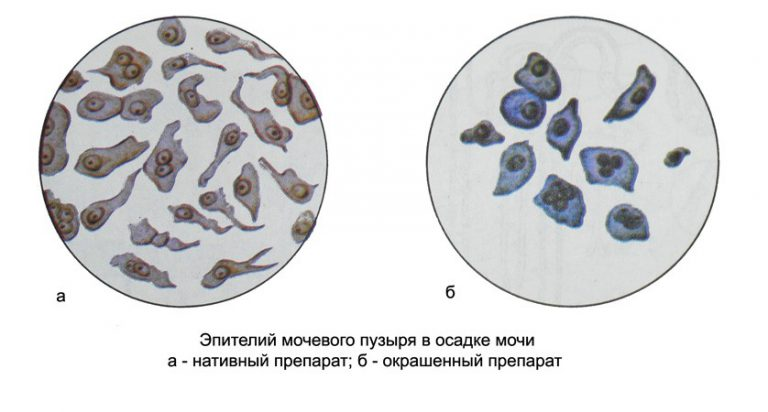 эпителий мочевого пузыря