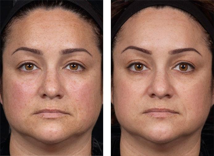 феруловый пилинг отзывы фото до и после