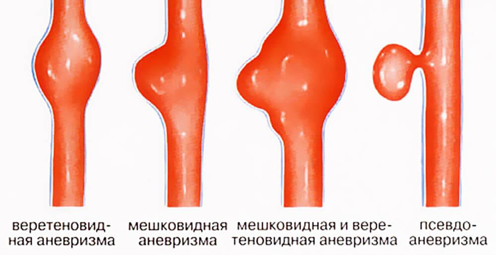 Фото виды аневризмы брюшной аорты