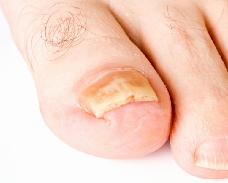 Многолетнее поражение ногтевой пластины