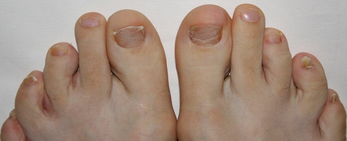 Средства от межпальцевого грибка на ногах народными средствами