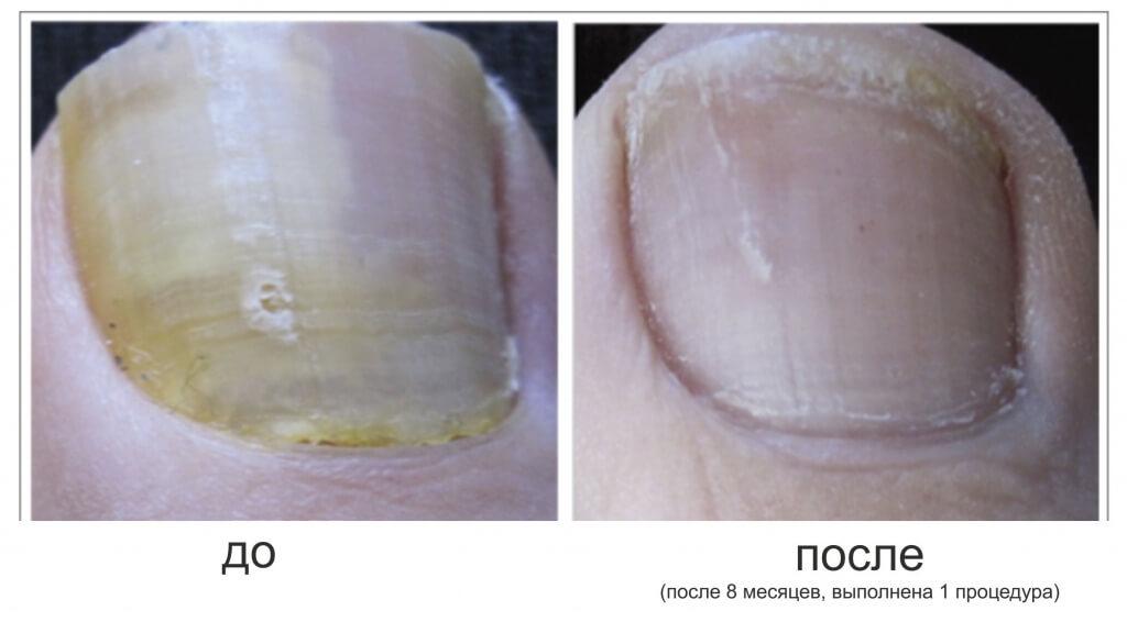 Лак от грибка ногтей офломил инструкция по применению цена отзывы