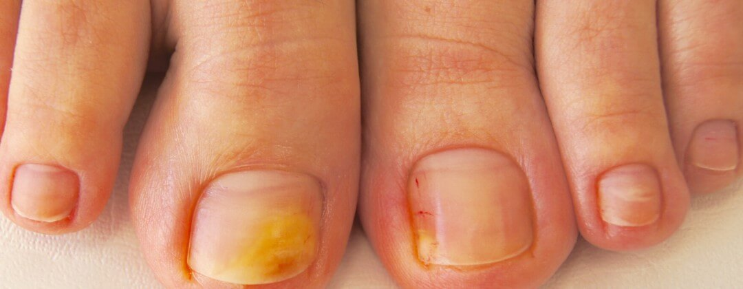 Как снять ноготь на ноге для лечения грибка ногтей
