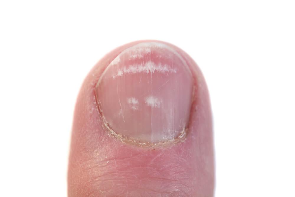 Чем лечить грибок ногтей у ребенка 12 лет