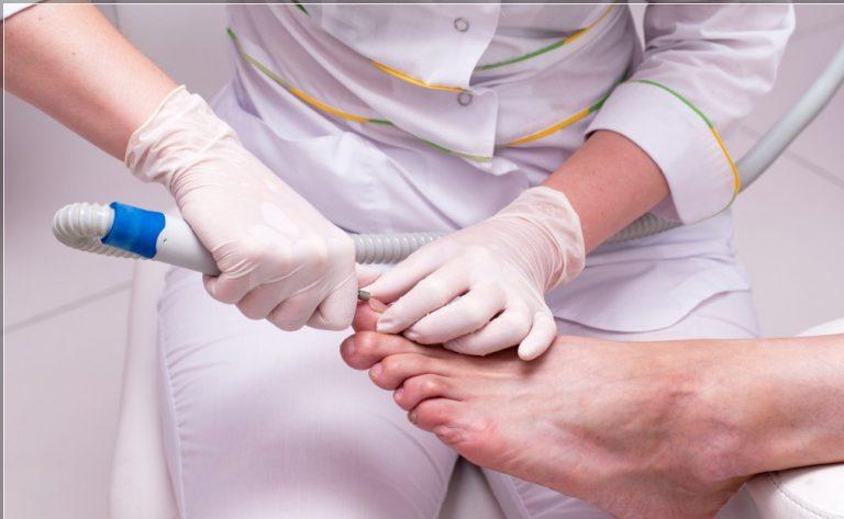 Истончаем больной ноготь без жалости – новый вырастет здоровым