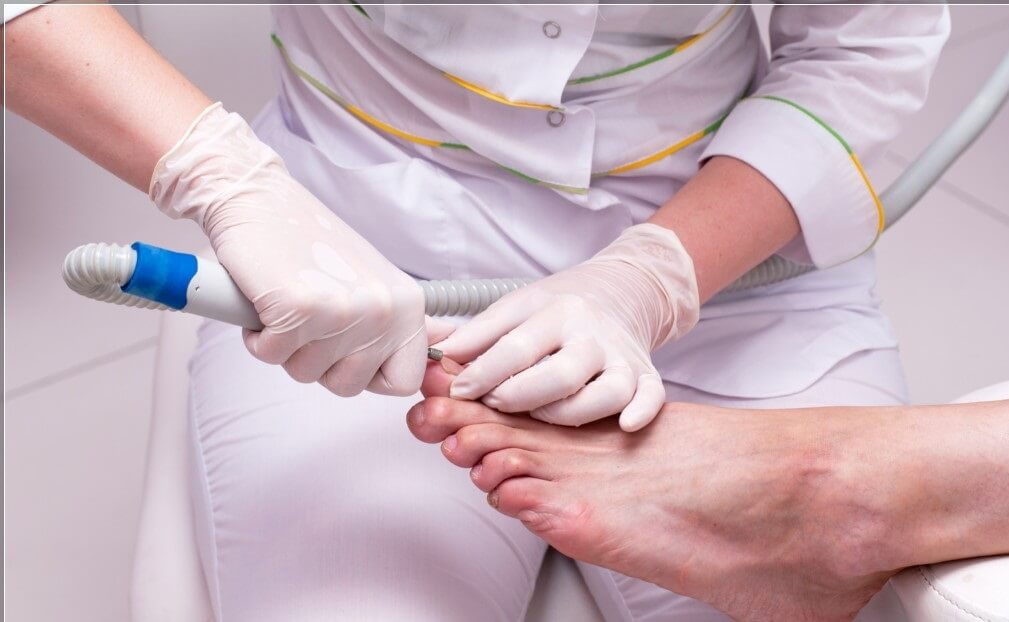 Как лечить ногти отслоения
