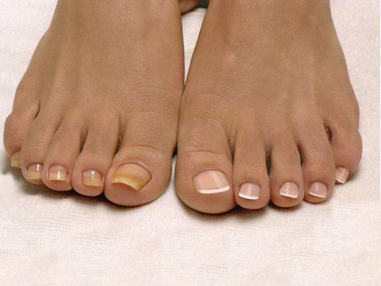 Верните ногам красоту и здоровье