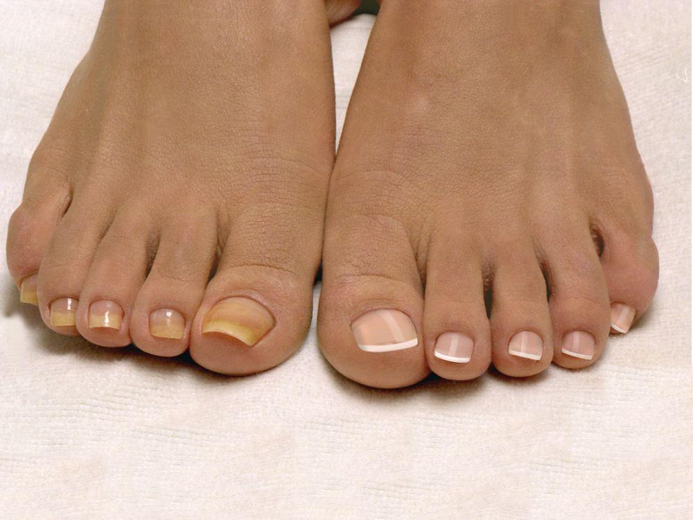 Можно ли мазать йодом грибок на пальцах ног