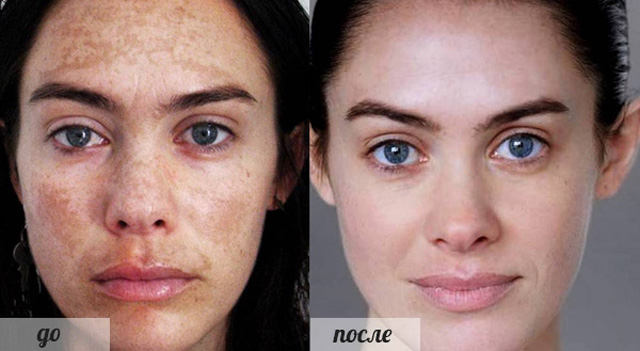 Фото пилинг до и после процедуры