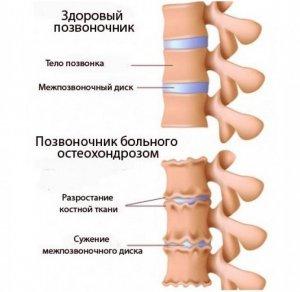 Фото стадии развития остеохондроза