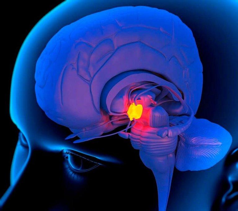 изображение опухоли гипофиза