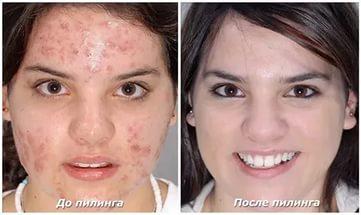 Фото до и после процедуры с использованием салициловой кислоты