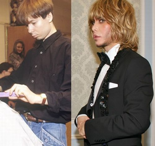 Сергей Зверев до и после пластики