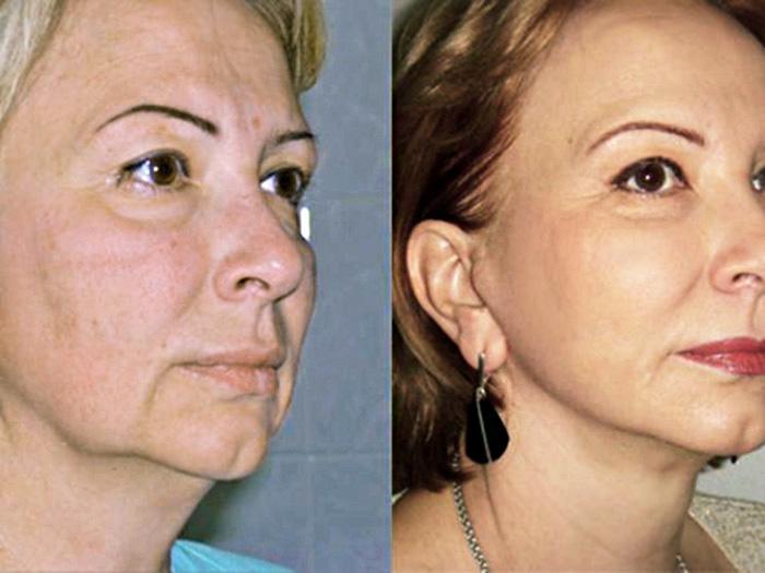 миостимуляция лица до и после