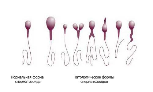 патологии сперматозоидов