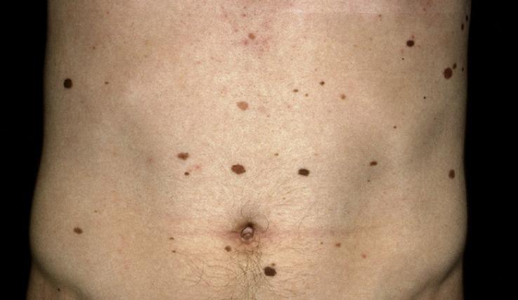 Невусы на теле причины, фото, разновидности, способы лечения
