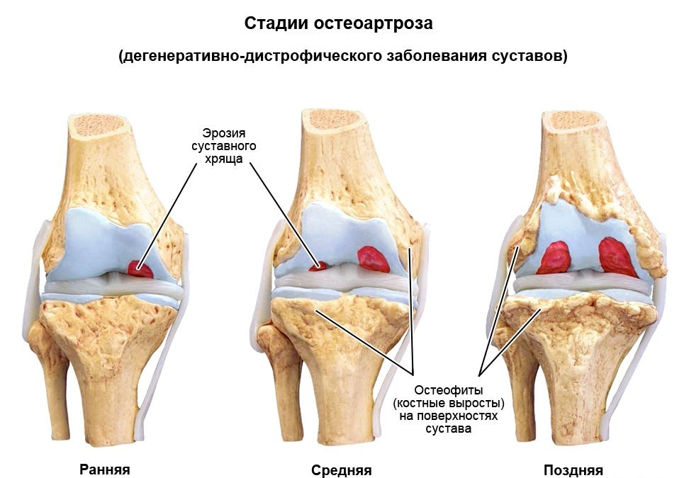 Болят и отекают голеностопные суставы