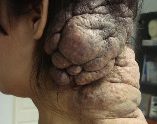 Гигантский пигментный невус