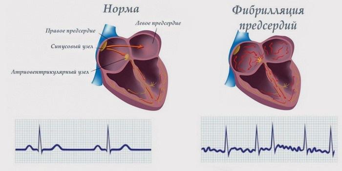 работа сердечного ритма