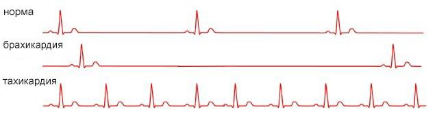 частота сердечных ритмов