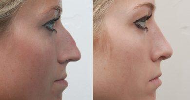 фото пластики носа