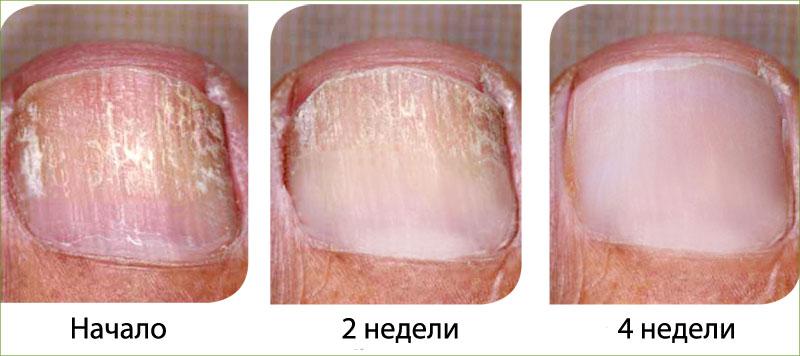 фото результаты комплексного лечения