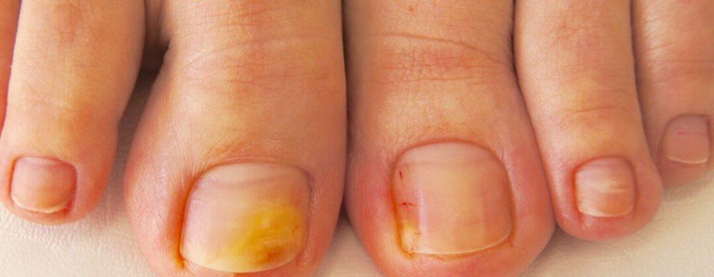 фото грибок ногтей на ногах