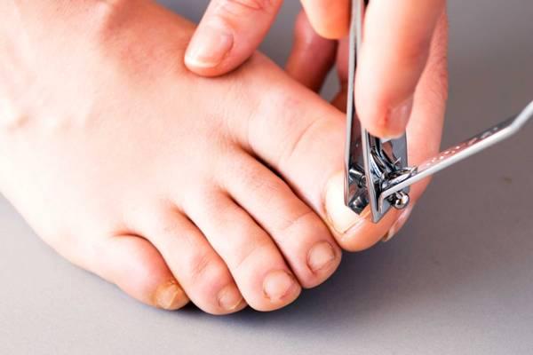 неправильная обрезка ногтевой пластины
