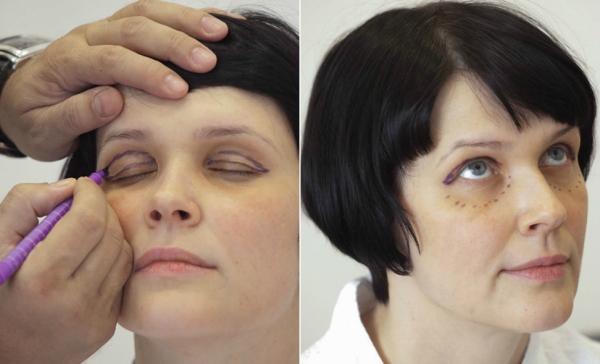 до и после процедуры блефаролифтинга