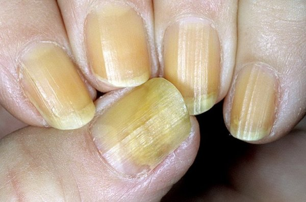 Онихомикоз ногтей - фото, лечение и эффективные препараты