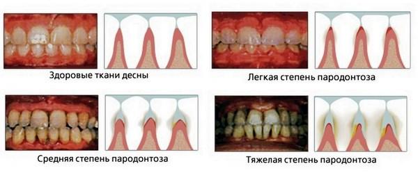 степени пародонтоза