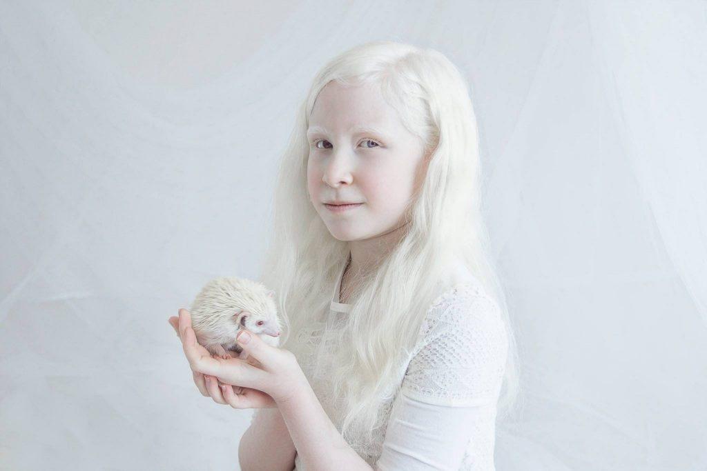 альбинизм это