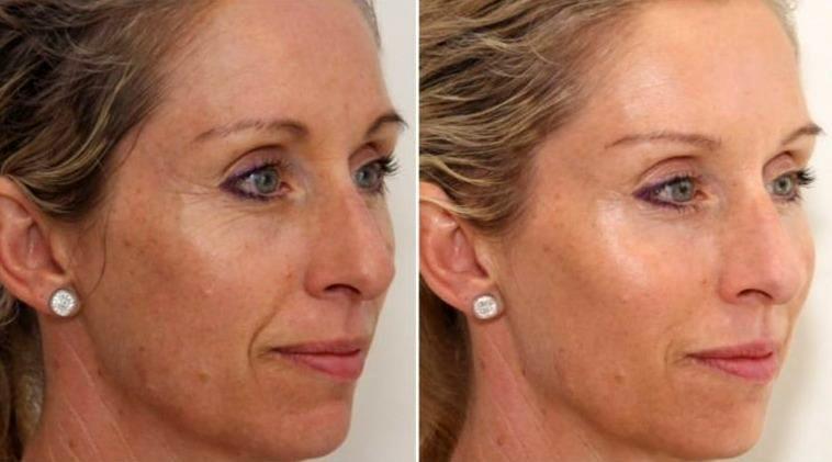 до и после буккального массажа