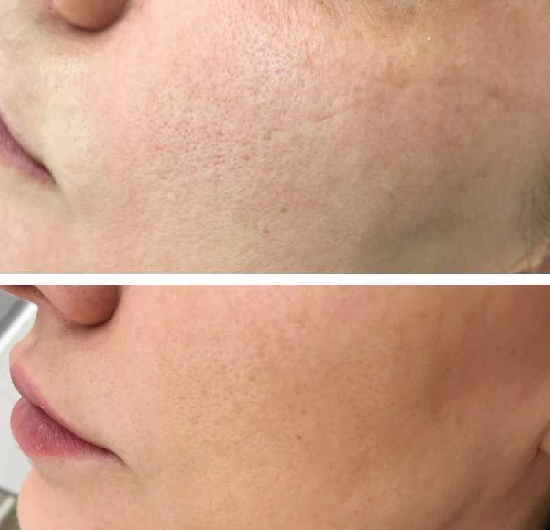 Расширенные поры на лице — как избавиться?