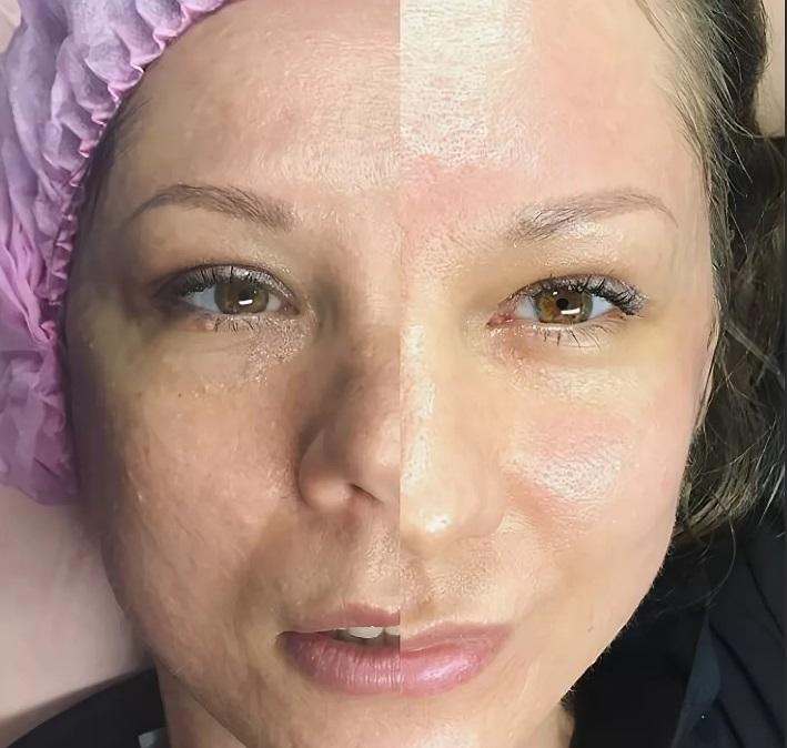 До и после BB Glow