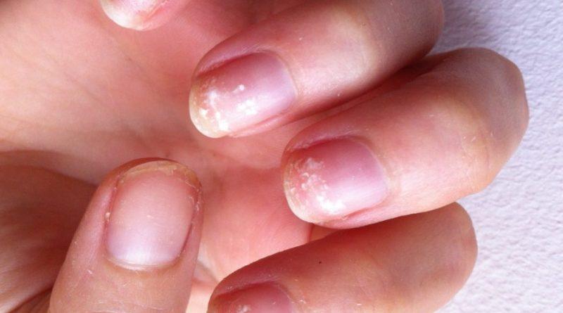 Как вылечить ломкость ногтей