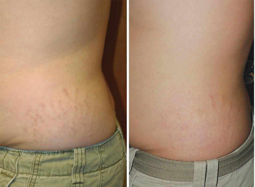 Растяжки фото до и после салонных процедур